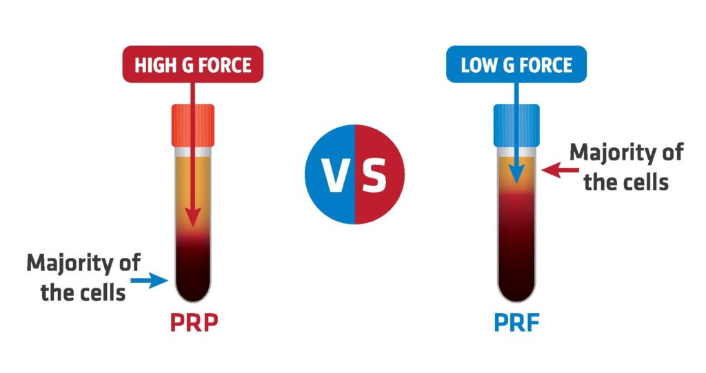 Platelet Rich-Fibrin vs Platelet Rich-Plasma – Aesthetic Technique by AIAM Trainings